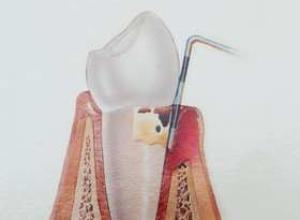 ligamento periodontal do dente